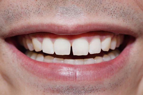 Промежуток между зубами
