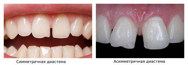 Симметричная и асимметричная диастемы
