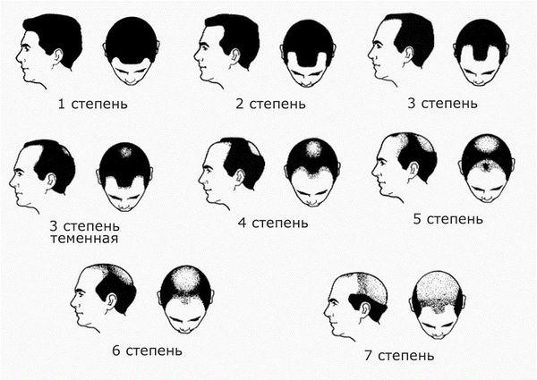 Выраженность потери волос у мужчин по шкале Норвуда