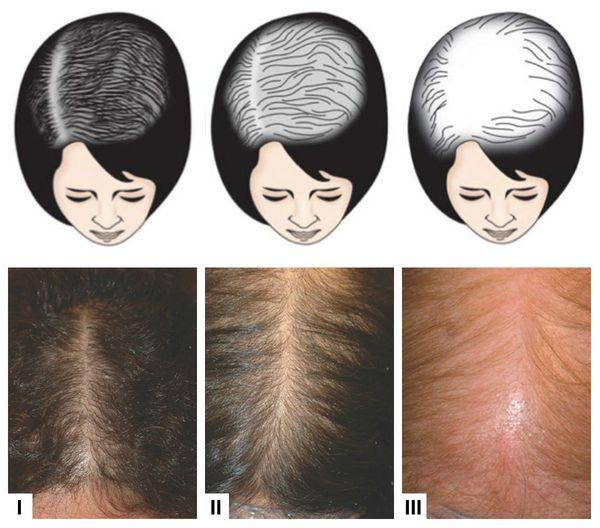 Выраженность потери волос у женщин по шкале Людвига