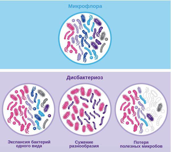 Микрофлора и типы дисбактериоза