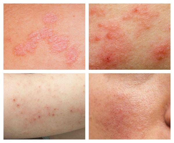 Виды поражения кожи, связанные с дисбиозом