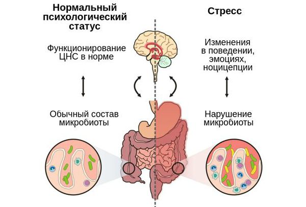 Влияние дисбиоза на нервную систему