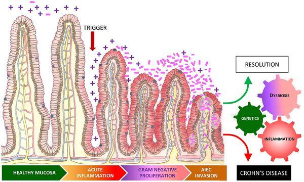Воспаление стенки кишечника при дисбактериозе