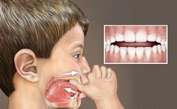 Сосание пальца влияет на формирование зубных дуг