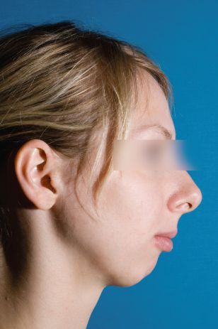 Верхняя челюсть выступает вперед