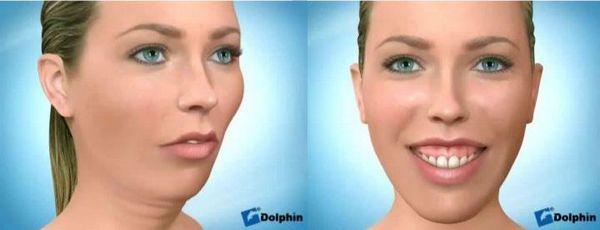 Западение губы на нижней челюсти и укорочение губы на верхней