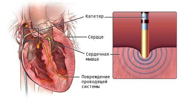 Радиочастотная катетерная абляция (РЧА)