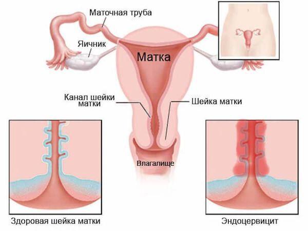 Эктопия цилиндрического эпителия шейки матки что это 4