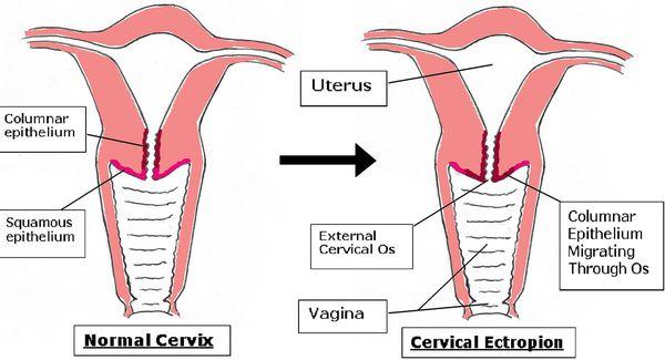 Эктопия цилиндрического эпителия шейки матки что это 2