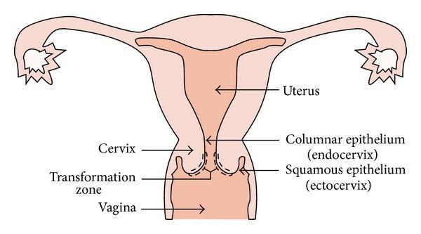 Эктопия цилиндрического эпителия шейки матки что это 3