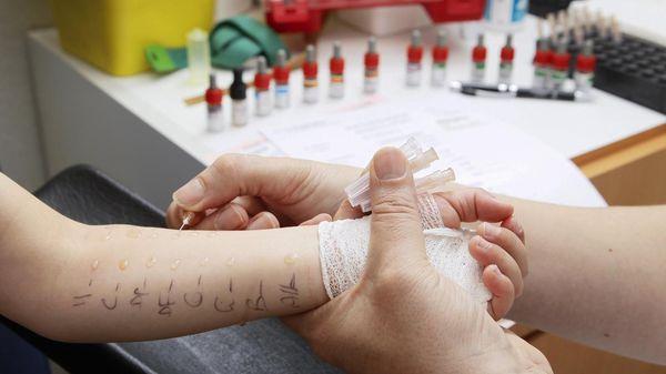 Кожная проба на аллергены