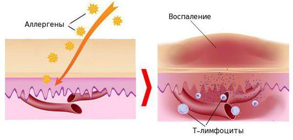 Патогенез воспаления