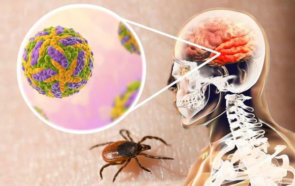 Поражение нервной системы вирусом клещевого энцефалита