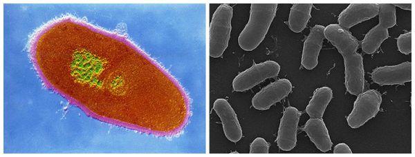 Бактерия Corynebacterium minutissimum
