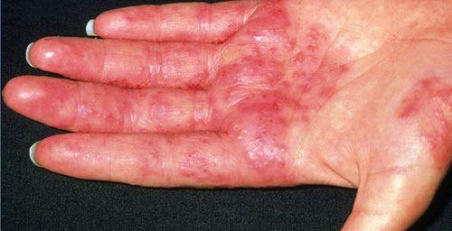 Раздражённый контактный дерматит