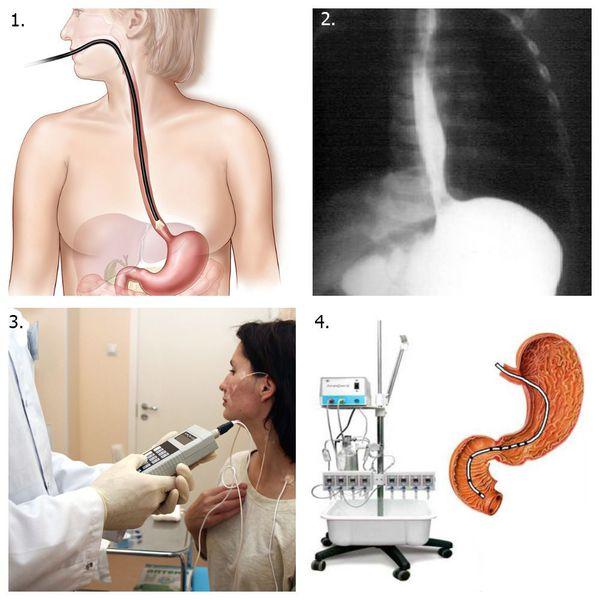 Инструментальные методы диагностики эзофагита