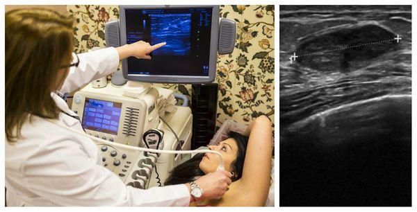 УЗИ-признаки фиброаденомы молочной железы