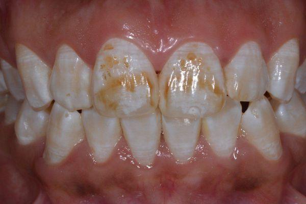 Поражение зубной эмали при флюорозе