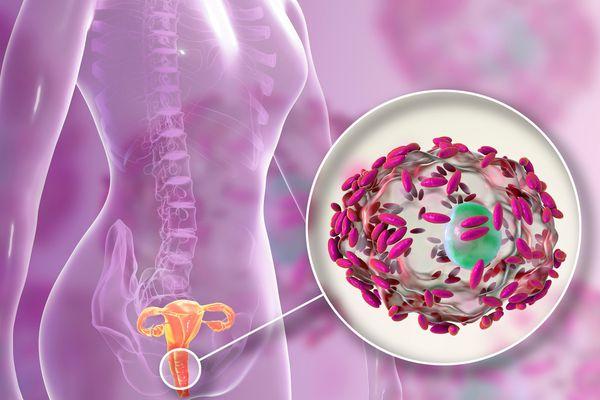 Воспаление, вызванное бактерией Gardnerella vaginalis