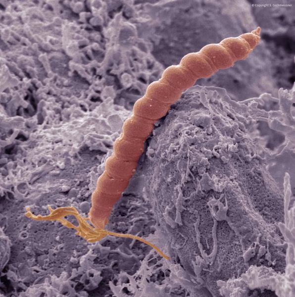 H. pylori в желудке