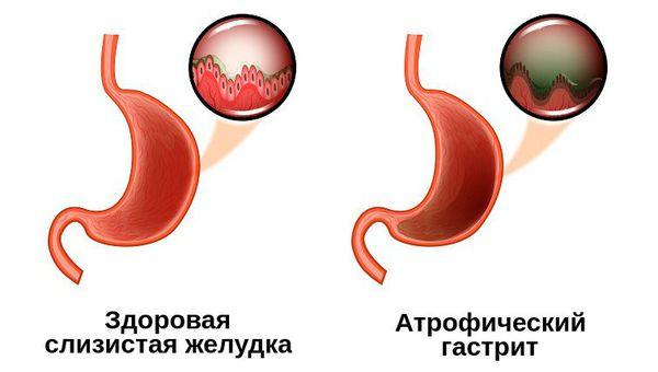 Слизистая желудка при атрофическом гастрите