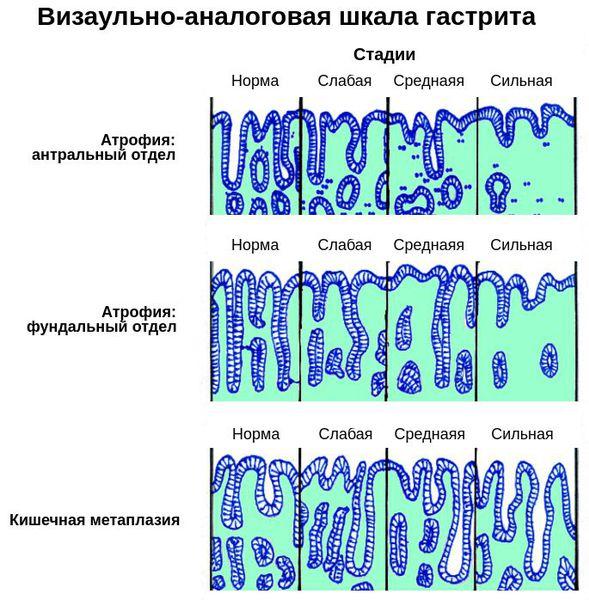 Визуально-аналоговая шкала гастрита