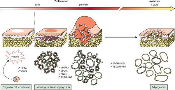 Механизм роста сосудистой опухоли