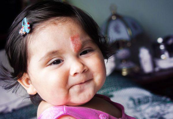 Сосудистая опухоль (гемангиома) у ребёнка