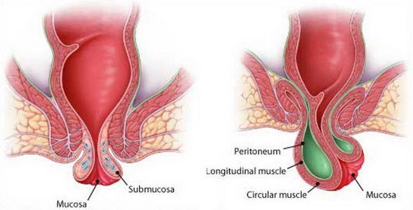 геморрой с выпадением узлов 2 3 стадии