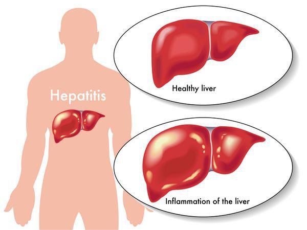 Изменение печени при поражении гепатитом Б