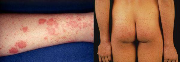 Уртикарные высыпания в преджелтушном периоде заболевания