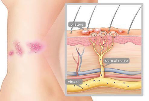 Проникновение вируса ветряной оспы в кожу