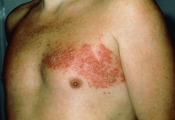 Везикулёзная сыпь при опоясывающем герпесе