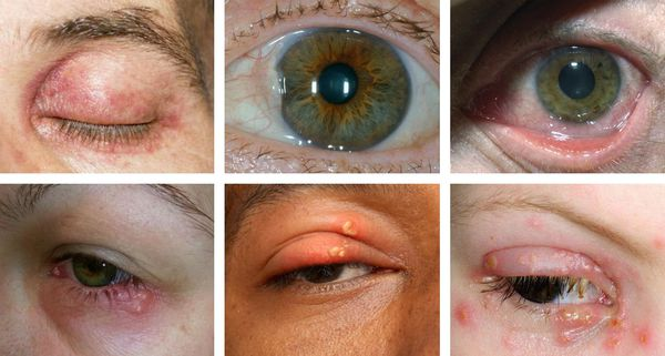 Признаки офтальмогерпеса