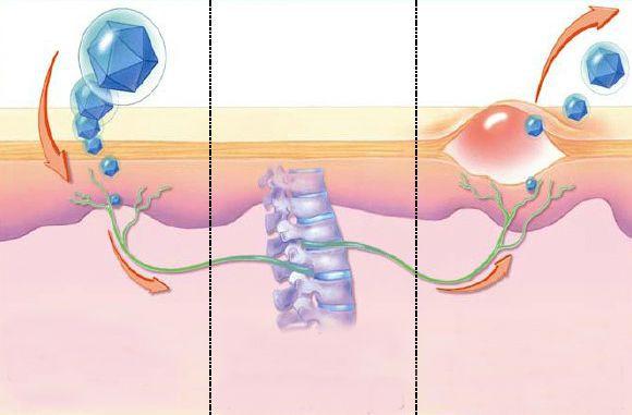 Заражение, иммунное ускользание вируса и его реактивация