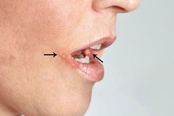Признаки герпетического стоматита