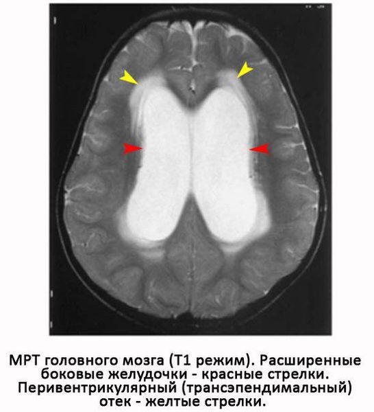 Расширенные желудочки, сдавливающие окружающую мозговую ткань