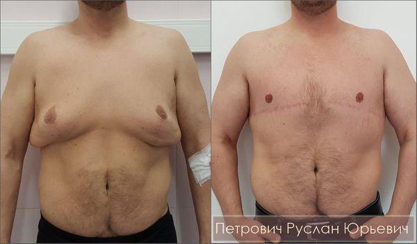 Ампутационная пластика груди при выраженной гинекомастии — результат операции через шесть месяцев