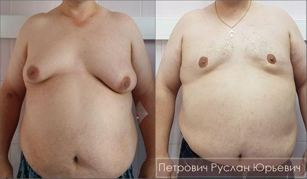 Боковая подтяжка груди при асимметричной гинекомастии IV стадии — результат операции через год
