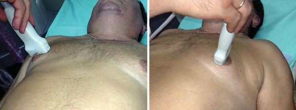 Диагностика гинекомастии с помощью УЗИ грудных желёз
