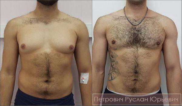 Коррекция гинекомастии II стадии — удаление грудных желёз, липосакция области груди, формирование жировых площадок под ареолами сосков