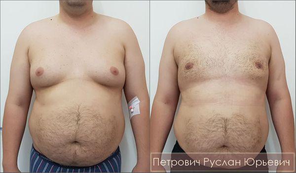 Удаление грудных желёз, липосакция, подтяжка груди вокруг ареол — папаареолярная пексия при гинекомастии III стадии. Результат операции через два месяца