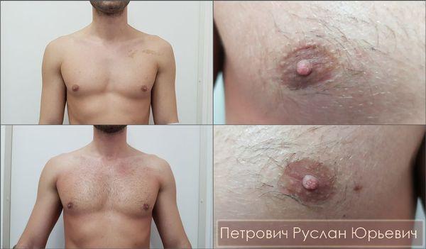 Удаление истинной гинекомастии через минидоступы по нижним границам ареол сосков — внешний вид рубцов через два месяца после операции