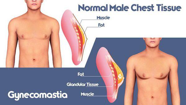 Здоровая ткань молочной железы мужчины и её изменение при гинекомастии