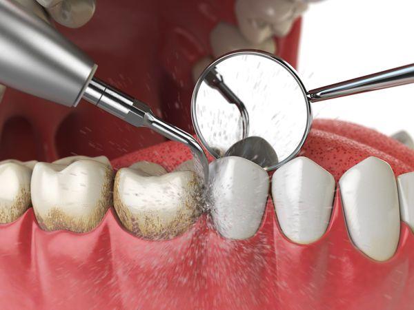 Удаление налёта и зубного камня