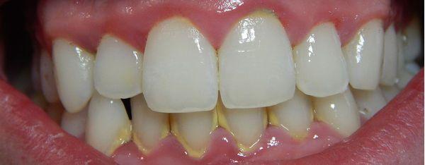 Зубной налёт/камень