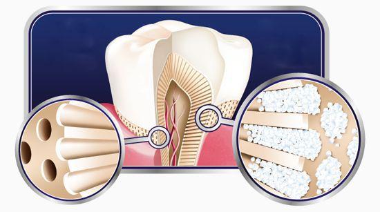 Закупорка дентинных канальцев веществами, содержащимися в зубной пасте