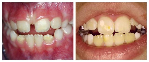 Гипоплазия передних зубов