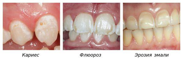 Кариес, флюороз и эрозия зубов, похожие на гипоплазию эмали